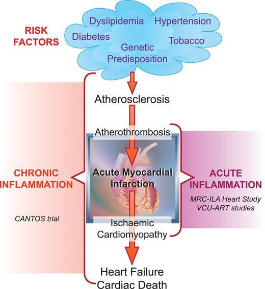Acute Coronary Syndrome European Heart Journal Oxford